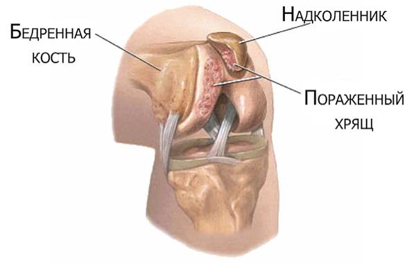 crăpături ale genunchiului fără durere