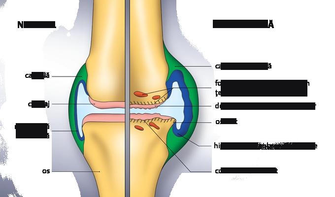 de ce umflarea degetelor în articulație cum se tratează epicondilita genunchiului