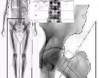 Osteoporoza: cauze, simptome si tratament | fotolii-canapele.ro