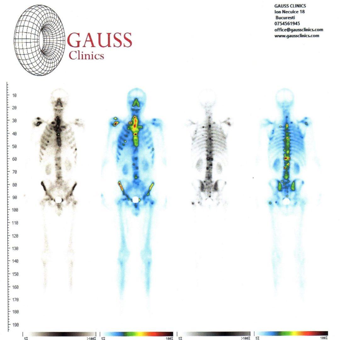 cremă pentru tratamentul articulațiilor genunchiului