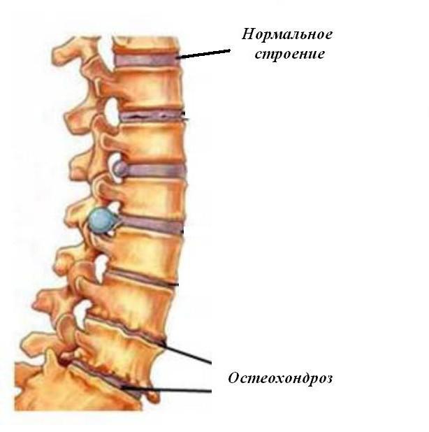 unguent care îmbunătățește circulația sângelui în osteocondroza cervicală numele tuturor unguentelor comune