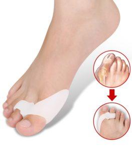 dureri de picioare la nivelul articulației șoldului singure