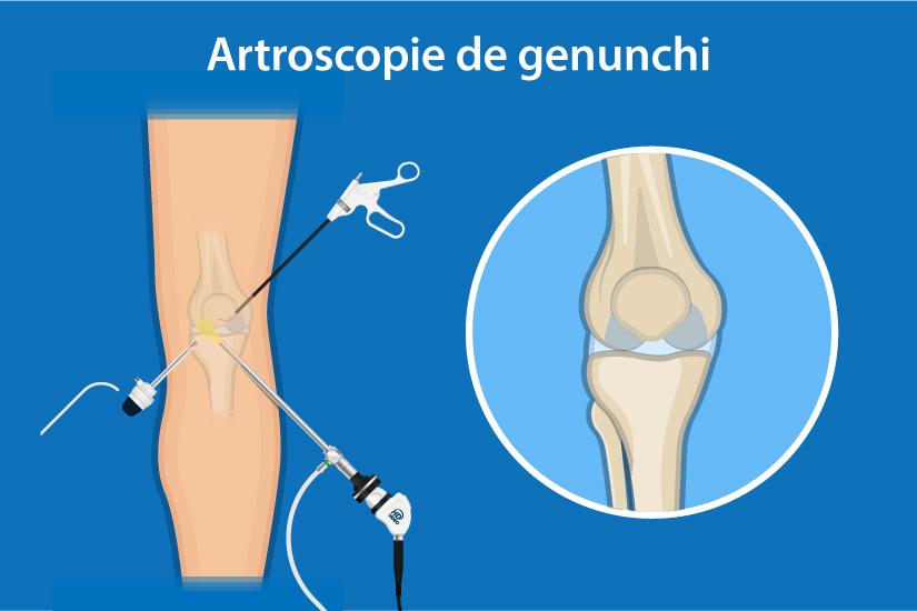 de ce durează articulația genunchiului?
