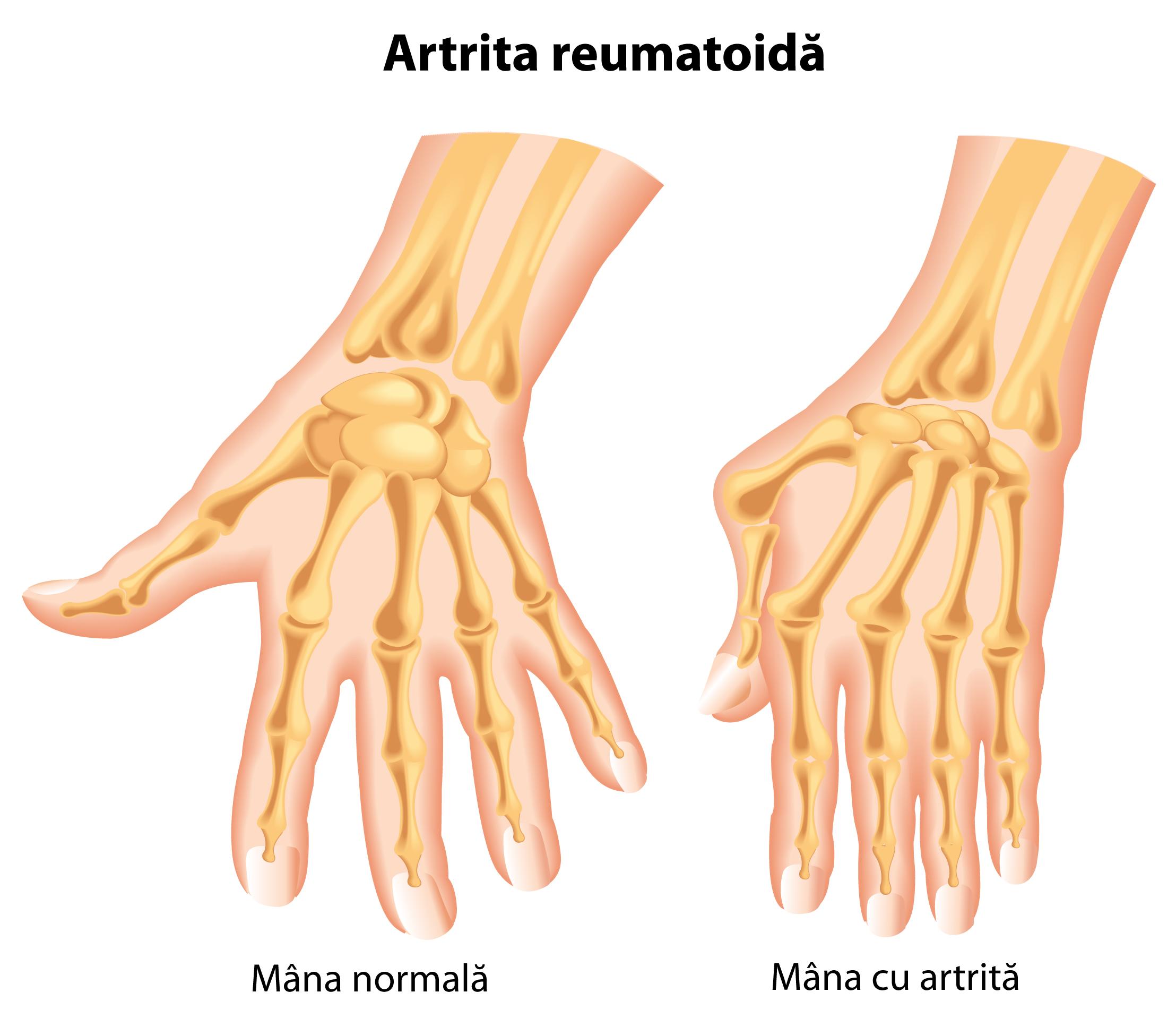de ce rănesc articulațiile degetelor noaptea