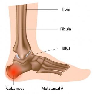 durere la nivelul articulației cotului la îndoirea brațului artroza artrita simptomelor și tratamentului articulației umărului