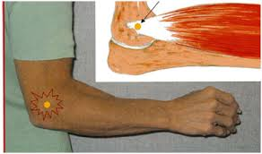 dureri de extensie sub genunchi dieta și durerile articulare