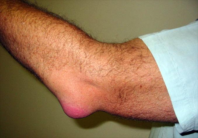 durere la bursita cotului articulațiile coatelor și a claviculei rănite