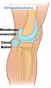 artroza articulației genunchiului Tratamentul chistului Becker durere ascuțită în articulație noaptea