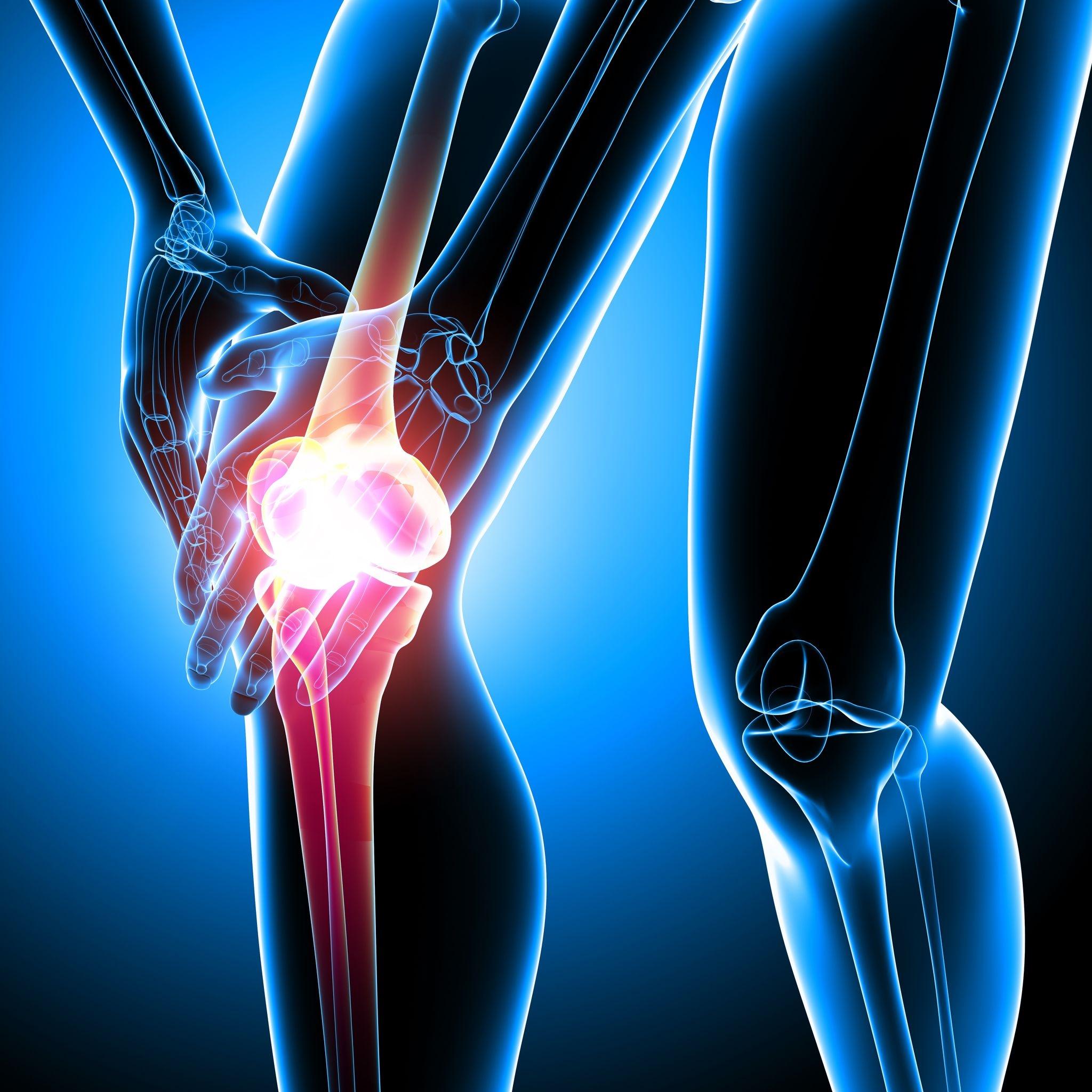 dezvoltare comună pentru artrită