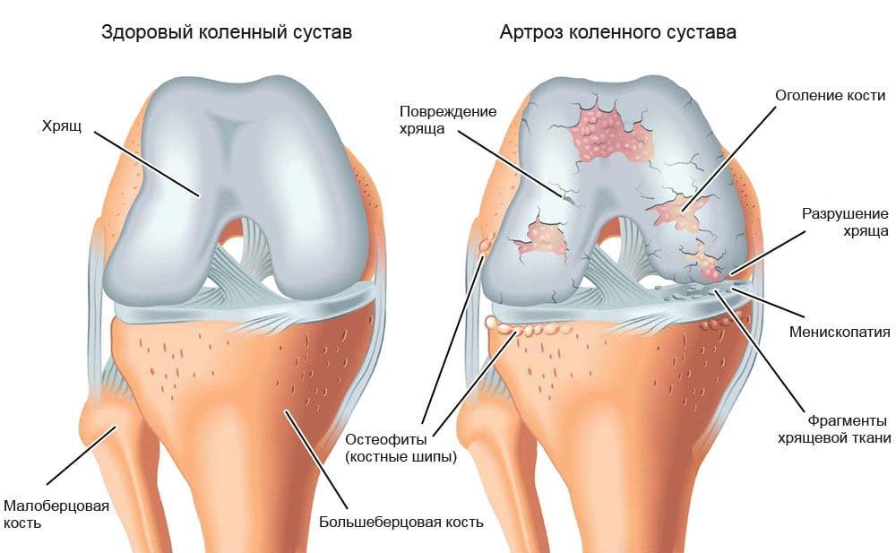 boala hock crunches tratamentul articulațiilor