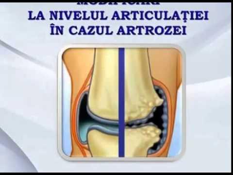 pastile și unguente pentru repararea articulațiilor tratarea durerilor articulare cu miere