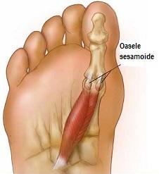 ruptura de tendon a tratamentului articulației genunchiului articulație dureroasă a degetului mic al mâinii stângi