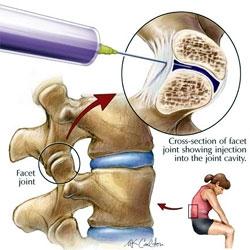 injecție eficientă de durere articulară sarcini de testare a bolii conjunctive difuze