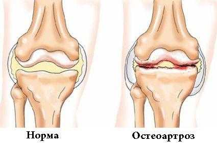 tincturi de alcool pentru tratamentul artritei cu artroză cauza bolii articulare a picioarelor