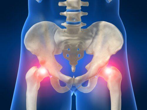 artrita de gradul 2 al articulației cotului