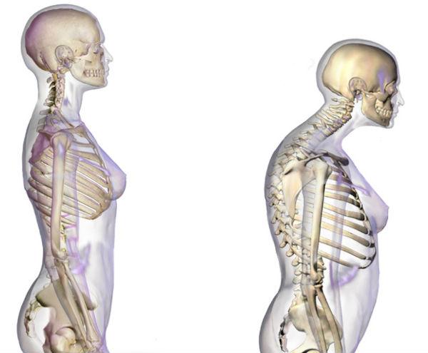 articulațiile picioarelor brațelor și gâtului