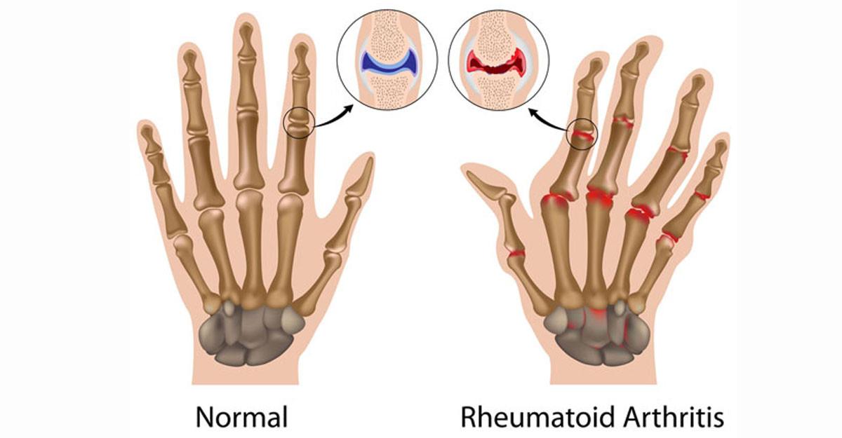 Afectiunile articulatiilor: Artrite si artroze | fotolii-canapele.ro
