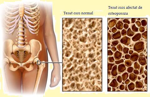 refacerea țesutului osos al articulației șoldului la 32 de ani, articulațiile doare