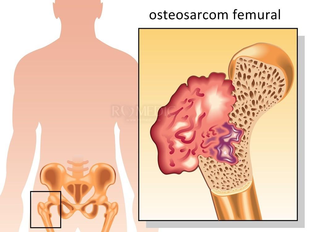 unguent articular pentru durere în farmacii gel voltaren pentru articulațiile genunchiului