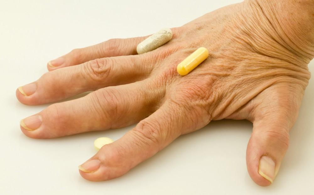 semne de artroză articulară