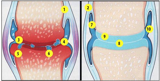crize de genunchi și dureri articulare