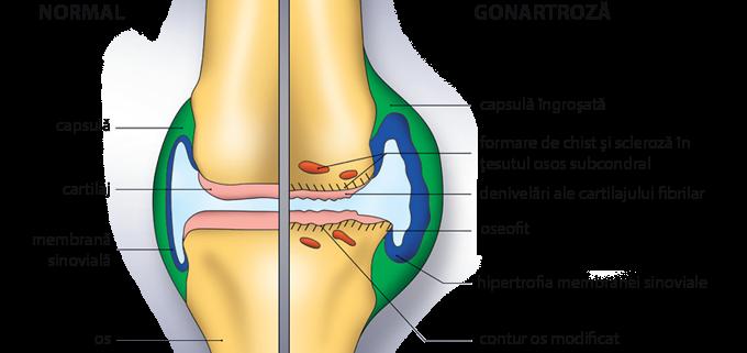 tratamentul ligamentelor sfâșiate în articulația genunchiului