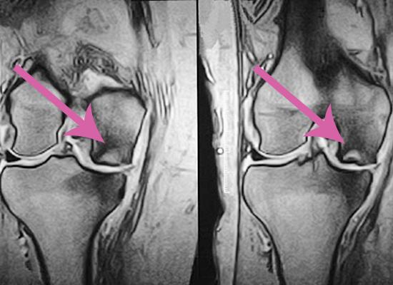 tratamentul osteonecrozei genunchiului complex de glucosamină condroitină sport