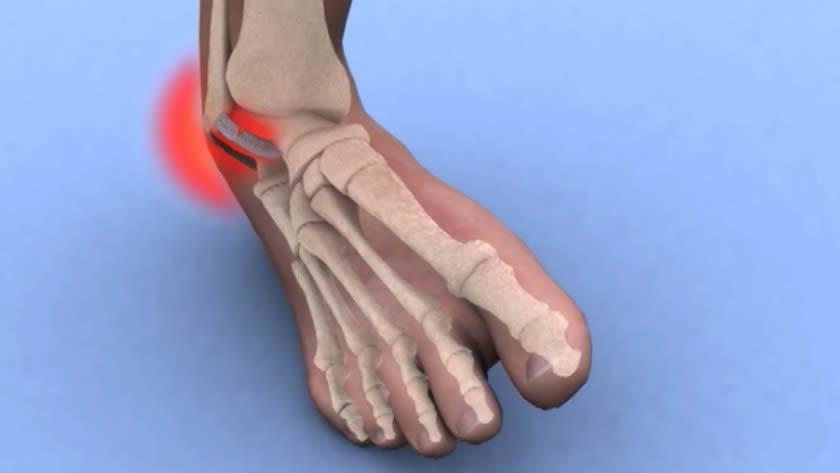 umflarea entorsei articulației piciorului