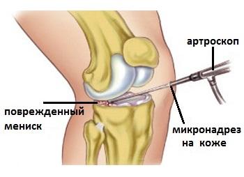 ușurați rapid umflarea articulației genunchiului sinovita seroasă a tratamentului articulației genunchiului